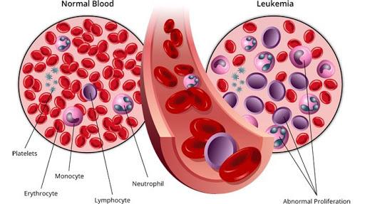 Mari Kenali  Gejala Penyakit  Mematikan 'Kanker Darah'